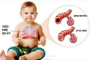 Cảnh báo: Viêm tiểu phế quản không chữa kịp thời dễ gây suy hô hấp, trẻ tử vong