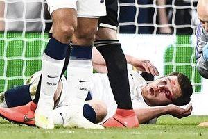 Tottenham thở phào về chấn thương kinh hoàng của Vertonghen