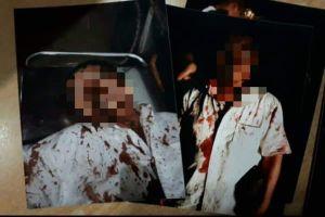 Côn đồ chặn đường dùng súng uy hiếp, đánh người dân nhập viện