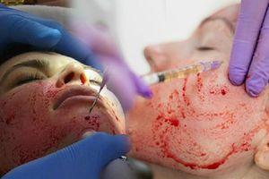 Ham hố tiêm máu làm đẹp da giữ mãi tuổi thanh xuân, 2 cô gái đau đớn khi biết mình bị nhiễm HIV
