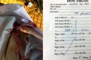 Cô gái trẻ bị kẻ lạ mặt dùng vật nhọn đâm chảy máu khi đang chờ đèn đỏ