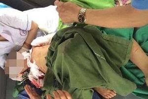 Thái Nguyên: Thêm một trẻ nhỏ bị chó nhà cắn tử vong