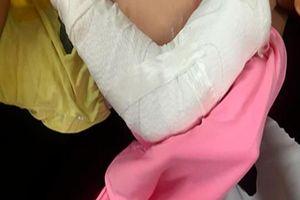 Chập chững ra đường, bé 19 tháng bị xe tải nghiền nát cánh tay