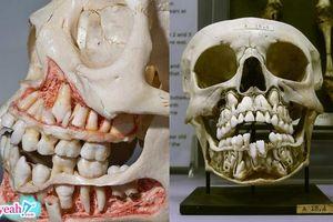 Răng vĩnh viễn ở đâu khi còn răng sữa? đáp án sẽ khiến nhiều người sợ lỗ không dám nhìn quá 3 giây