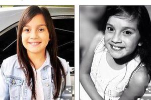 Cô bé 11 tuổi chết do dị ứng với kem đánh răng