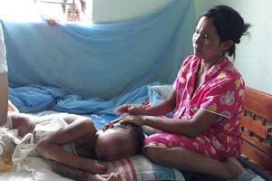 'Giải cứu' cậu bé 9 tuổi bị bỏng nặng có nguy cơ nhiễm trùng máu