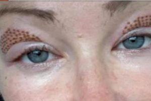Quý bà bị cháy mí mắt khi thực hiện thủ thuật nâng mí bằng bút plasma