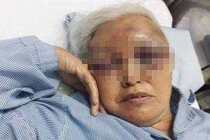 Con rể cũ đánh mẹ vợ nhập viện vì không được thăm con lúc rạng sáng