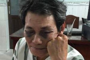 Dâm ô bé gái, ông già 63 tuổi bị dân đánh bầm dập