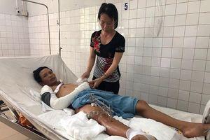 Tai nạn kinh hoàng khiến nam công nhân đứt lìa đùi phải