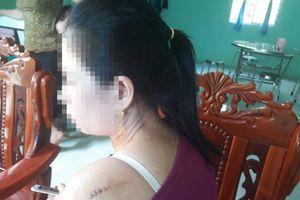 Cô dâu bị chém trong ngày cưới: Bầu 7 tháng hay sinh con mới 13 ngày đều bị chồng hành hung