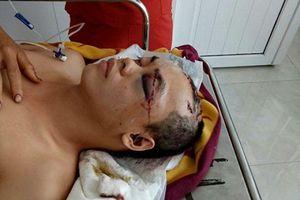 Phú Yên: Nghi can chém người, cướp của bị tóm gọn khi đang chuẩn bị vượt biên