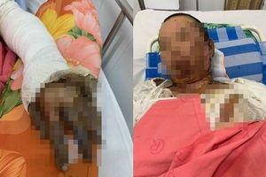 Phẫn nộ: Chồng nhậu say rồi về gây sự, mua xăng đốt vợ khiến nạn nhân bị bỏng nặng