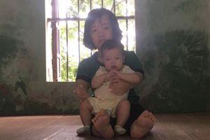 Con 8 tháng tuổi bị teo mật, bố mẹ tật nguyền cầu mong sự giúp đỡ