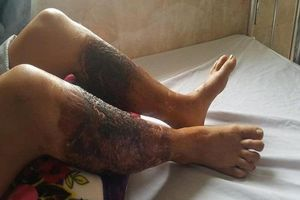 Bị bỏng nặng hai chân khi lội qua mương có chất thải độc hại