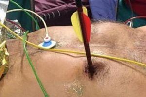 Người đàn ông tự bắn nỏ từ trước ngực xuyên qua tim ra sau lưng