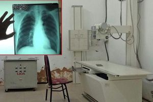 Bé gái tố bị xâm hại trong phòng X-quang: Chụp chiếu tim, phổi nhưng bắt bệnh nhi cởi cả quần lót...