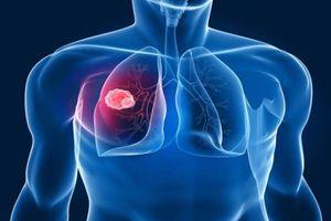 Không muốn nguy hại sức khỏe bạn không thể không biết 5 nguy cơ gây ung thư phổi nguy hiểm