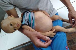 Sự sống mong manh của bé trai 1 tuổi, chỉ nặng 6kg, bụng phình to như cái trống mà mẹ nghèo không tiền chữa trị