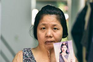 Uẩn khúc trong vụ người phụ nữ bị tạt axit 5 năm không tìm ra hung thủ