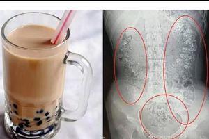 Quá mê trà sữa, cô bé nhập viện vì nghẽn hạt trân châu trong ruột
