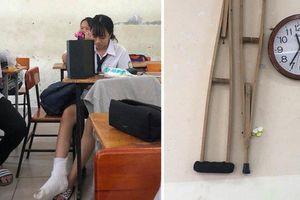 Bị gãy chân bó bột cô gái còn khốn khổ hơn khi bạn cùng lớp dở trò chơi khăm