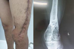 Lần đầu ghép cơ phục hồi chân cho nạn nhân bị tai nạn giao thông