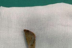 Người bệnh thủng ruột non sau khi ăn bún sườn