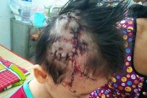 Bé trai 5 tuổi bị chó béc-giê cắn nhập viện