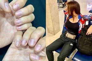 Hoa hậu Kỳ Duyên khiến fans xót xa với bàn tay bong tróc tơi tả vì bốc đất