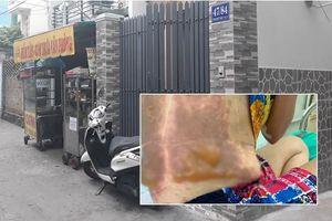 TP.HCM: Mâu thuẫn chuyện đỗ xe, người phụ nữ bị tạt cả chảo dầu đang chiên cá gây bỏng nặng