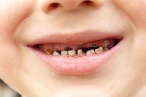 Sâu răng không chữa, bé 3 tuổi suýt mù