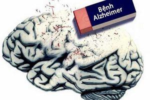 Phòng ngừa bệnh Alzheimer ở người lớn tuổi