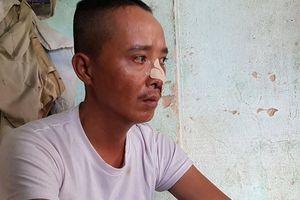 Truy sát 3 cha con ở Quảng Nam: Kinh hoàng hỗn chiến qua lời kể bị hại