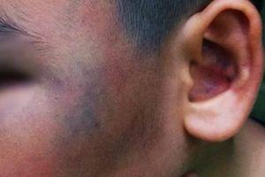 Nghi trộm gà, đánh bầm mặt bé trai: Hoảng loạn