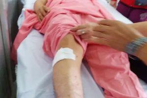 Bệnh viện Chợ Rẫy báo cáo Bộ Y tế vụ khoan nhầm cẳng chân