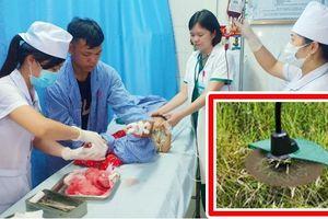 2 giờ cấp cứu căng thẳng cho bé gái 2 tuổi bị máy cắt cỏ chém vào chân