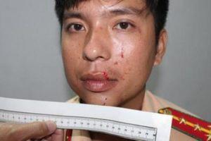Khởi tố nhóm thanh niên tấn công lực lượng công an
