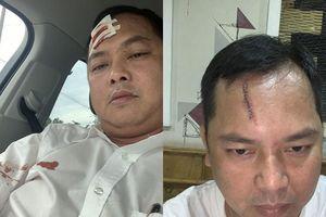 Vụ gây rối trật tự ở Biên Hòa: Nạn nhân bị đánh rách trán nói gì ?