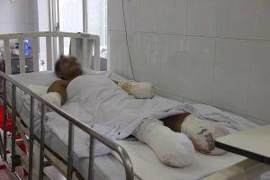 2 công nhân bị điện giật nguy kịch phải cắt cụt tay, chân