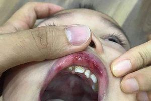 Hà Nội: Cô giáo 'vuốt má' bé 3 tuổi hằn cả bàn tay và tụ máu môi