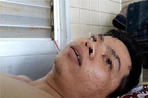 Vụ bệnh nhân bị gãy xương ngực nhưng khoan nhầm cẳng chân: Bệnh viện Chợ Rẫy nói gì?