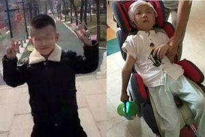 Bé trai 6 tuổi bị mẹ kế độc ác bạo hành phải sống đời thực vật