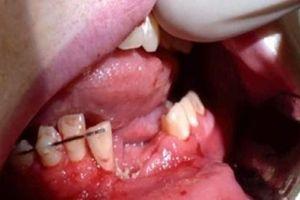 Thanh niên hút thuốc lá điện tử bị nổ vỡ hàm