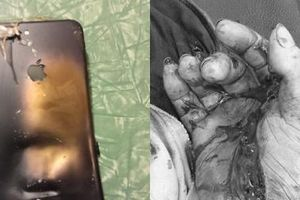 Bắc Giang: Vừa lướt mạng vừa sạc, iPhone phát nổ nát tay người đàn ông