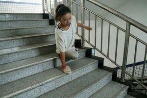 Triết lý sống của cô gái tự 'tỏa sáng' dù mẹ qua đời, bố bỏ đi, mất 2 chân từ năm 6 tuổi