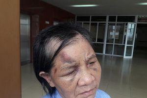 Quảng Ninh: Điều tra vụ cháu ngoại đánh bà ngoại gãy 5 xương sườn