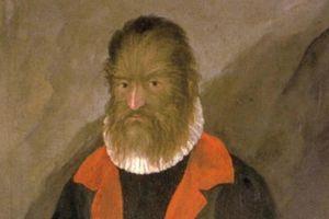 Bi kịch của 'người sói' bị đối xử như thú vật
