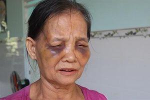 Dậy sóng mạng xã hội: Con dâu túm tóc đánh mẹ chồng tím mặt