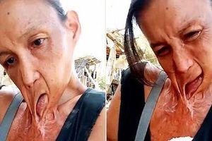 Clip: Người phụ nữ miệng dính trên ngực suốt 15 năm